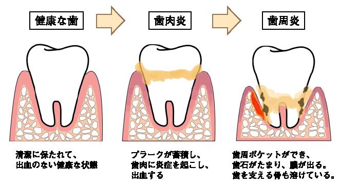 歯周病と糖尿病の深い関係 - 岩見沢の歯医者なら鳩が丘歯科 ...