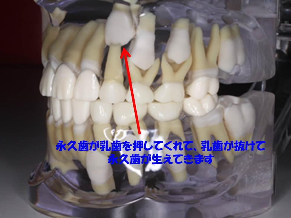 抜け ない 永久歯 生える 乳歯